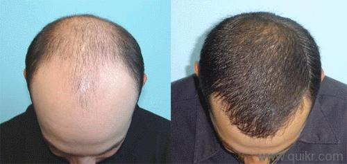 Coconut Oil For Hair Loss Men