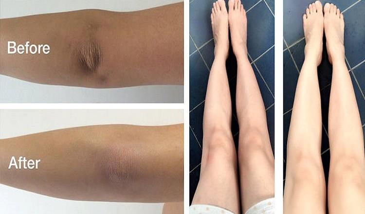 dark knees and elbows