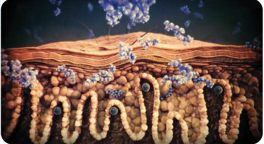plaque-psoriasis treatment