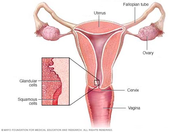 cervical-cancer-treatment-symptoms-causes
